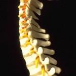 L' hernie discale , ce qu'elle est, ses symptômes, son origine