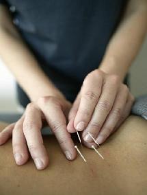 Soulager maux de dos avec l'acupuncture, vous hésitez