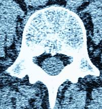 Protrusion discale l4 l5 les causes