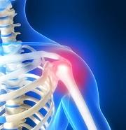 4 causes de douleurs dans les épaules